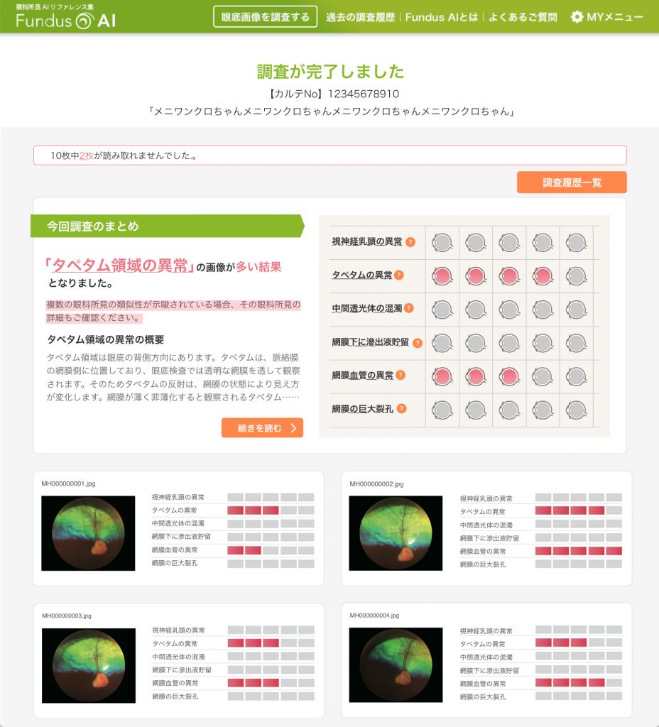 Fundus AI(ファンダスアイ) 画面イメージ1